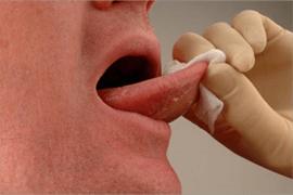 Mouth Cancer Soft Tissue Exam